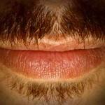 Infecciones orales por virus del papiloma humano son más comunes en hombres