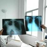 Pediatras evalúan escuela donde apareció caso de tuberculosis
