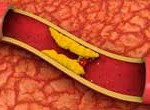 Colesterol duplica número de pacientes en EE.UU. por cambio en política sanitaria