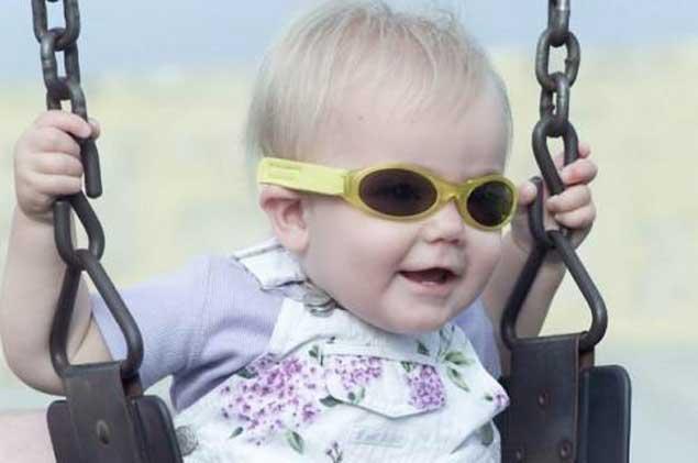 0dd93c4d7f Las niñas albinas recibirán sus lentes este jueves - Noticias ...