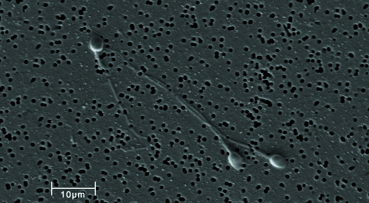 Imagen de microscopio digital de espermatozoides / Foto: Wikimedia Commons