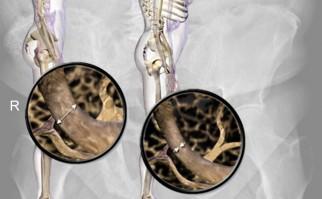 Descubren mecanismo que evita pérdida de hueso por causa de la osteoporosis