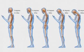 Revisar los celulares y tablets constantemente trae problemas de columna y cuello