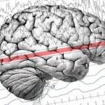 Día Internacional de la Epilepsia apunta disminuir la discriminación a los que padecen la enfermedad