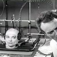 Equipo científico en Italia afirma que en 2017 podrán hacer el primer trasplante de cabeza en humanos