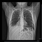 Confirman al enfisema como factor de riesgo en 30% de los casos de cáncer de pulmón