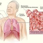 OMS: Día Mundial de lucha contra la enfermedad pulmonar obstructiva crónica (EPOC) en trágica expansión