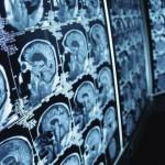"""Científicos alemanes descubren gen que hace """"único"""" al cerebro humano"""