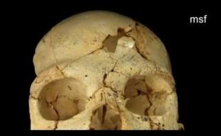 Informe forense confirma un asesinato hace 430.000 años el más antiguo jamás registrado