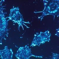 OMS recuerda que la mitad de los casos de cáncer podrían prevenirse siguiendo doce recomendaciones clave
