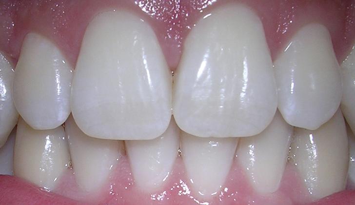 Primer paso para la regeneración de dientes en humanos a partir de ...
