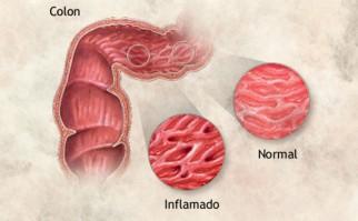 Imagen: Biblioteca Nacional de Medicina de EE.UU.