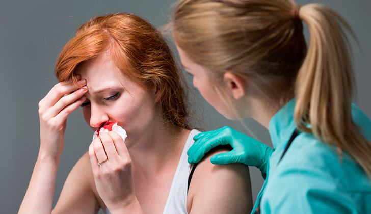 ¿Qué es la enfermedad HHT? ¿Cuánto sabemos en Uruguay sobre ella?. Shutterstock