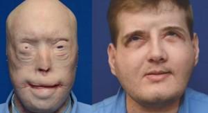 Bombero recibe trasplante total de cara tras 15 años de sufrimiento
