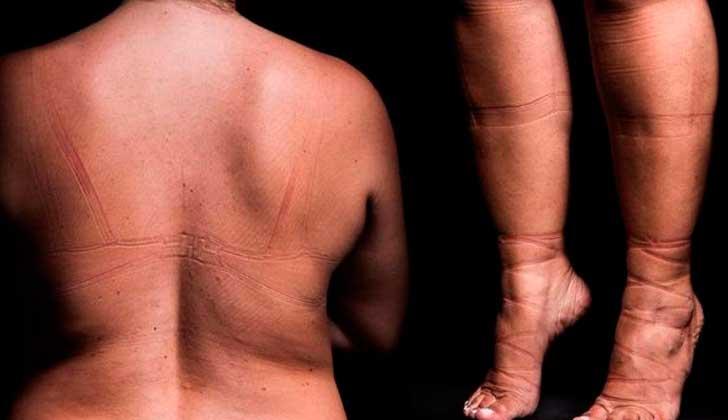 """Campaña brasileña muestra las marcas que deja en la piel """"ser esclava de la moda""""."""