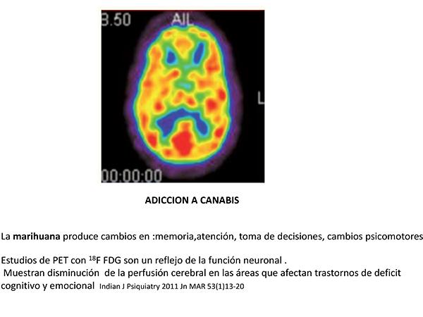 Imágenes del cerebro humano realizadas por tomografía de emisión de positrones (PET). Fuente: Presidencia de la República.