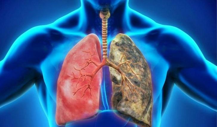 La enfermedad pulmonar obstructiva crónica, la cuarta causa de muerte a nivel mundial