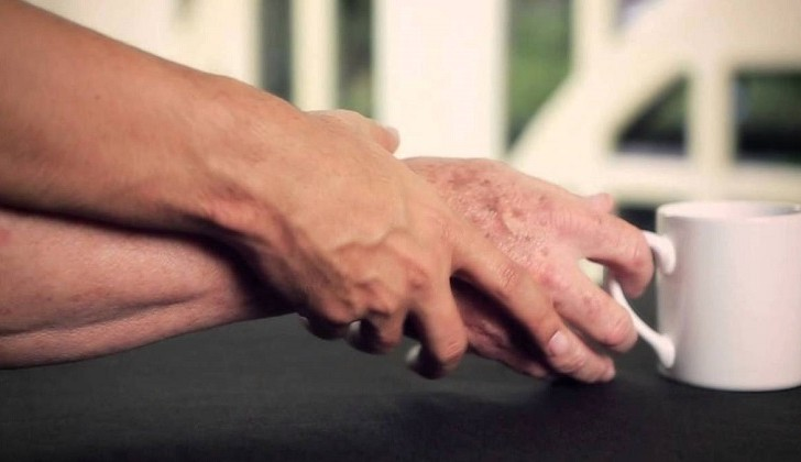 """""""En 2040 el Parkinson será la enfermedad grave más común""""."""