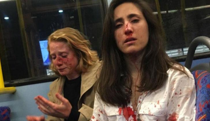 Melania Geymonat y su novia Chris agredidas en una autobús en Londres.